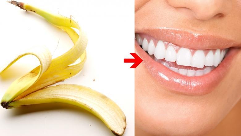 7 Pratik ve İlginç Çözüm İle Bembeyaz Dişler